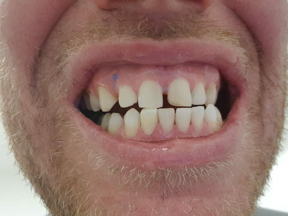 לפני יישור שיניים
